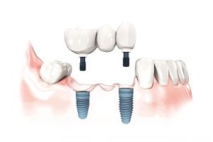 The benefits of dental implants are outstanding for Pearland, Friendswood, and Manvel patients.