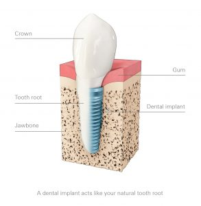 Close up diagram of dental implants available near Friendswood, Pearland, and Manvel.